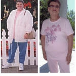 Peggy B. Gastric Bypass review