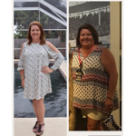 vertical gastric sleeve weight loss